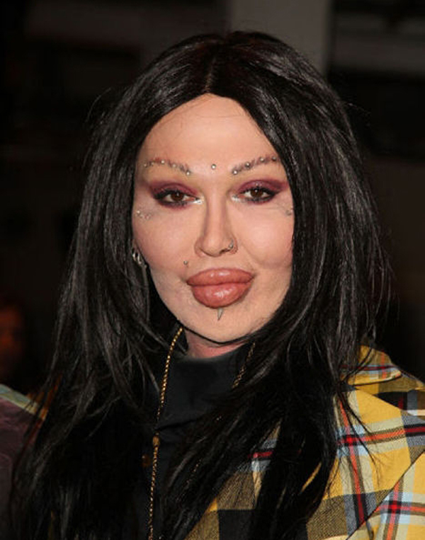 plastic surgery fail