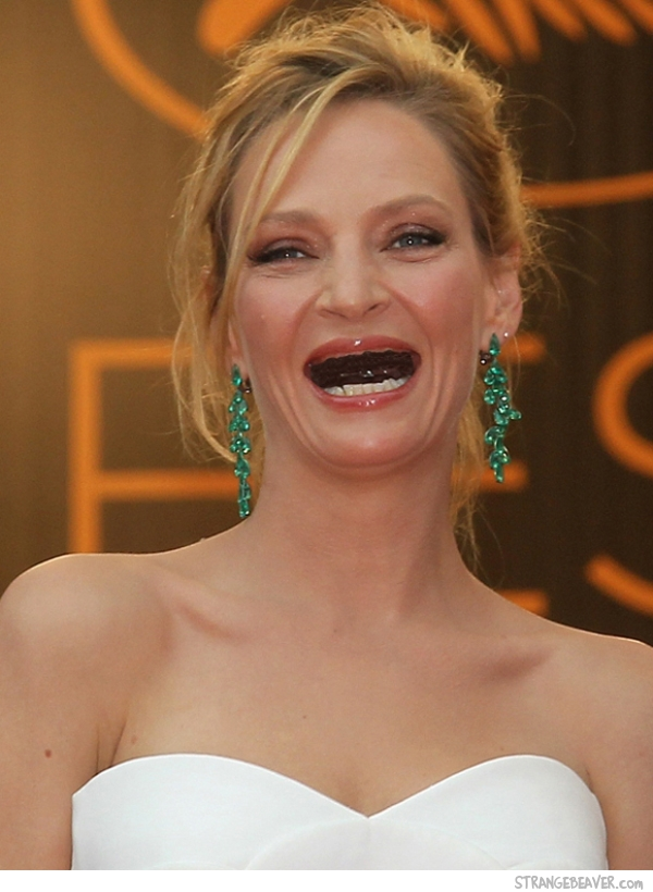 celebrities without teeth
