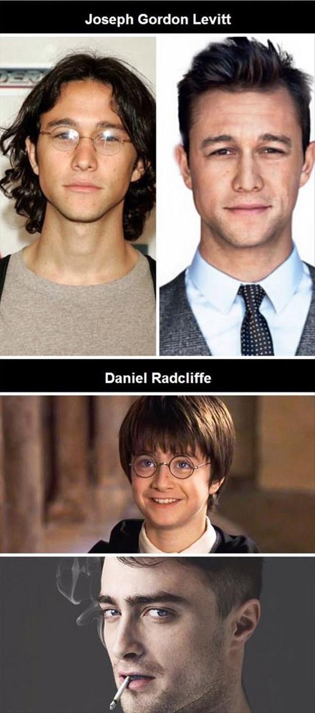 Celebs that used to be dorky looking
