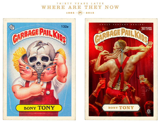 Bony Tony - Garbage Pail Kids - Where Are They Now?